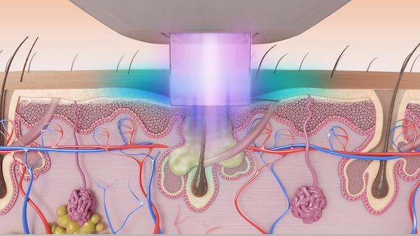 Laser Acne Treatment Naperville