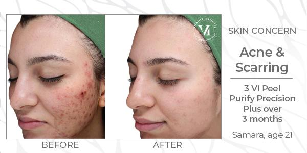 Chemical Peels Naperville