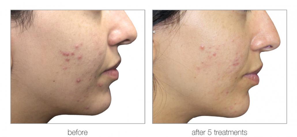 reduce acne blemishes