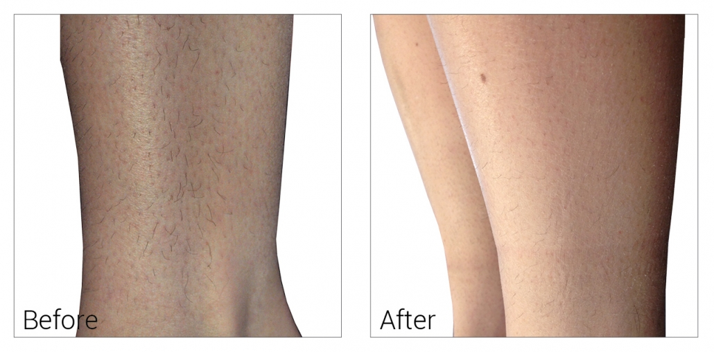 Permanent Hair removal Naperville