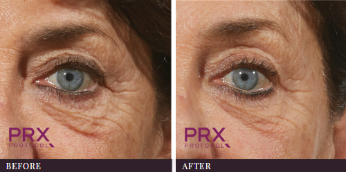 PRX-T33 Eye