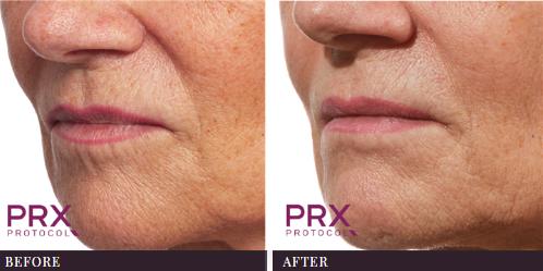 Lip Outline PRX-T33