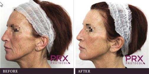 Face Wrinkles PRX-T33